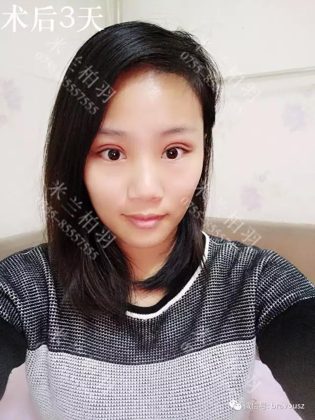 深圳米兰柏羽乐乐双眼皮